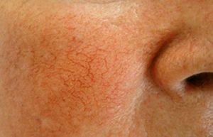 На щеках видны капилляры