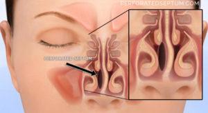 Образование костного гребня в носу