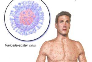 Повышен показатель варицелла зостер
