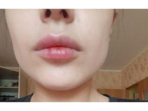 Опухла половя губа что делать?