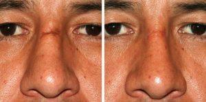 Можно ли избавиться от шрама на носу