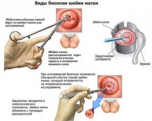 Боли после биопсии шейки матки