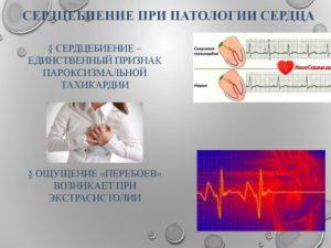 Сердце бьётся сильно, а пульс нормальный. Как с этим справиться?
