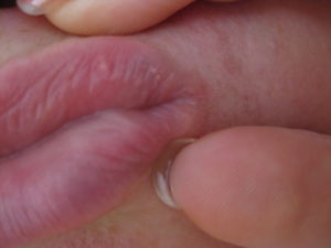 Пятно вокруг уретры на головке