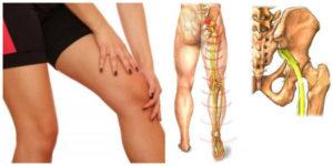 Боли в ноге - в бедре, колене и пояснице