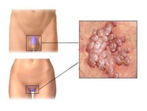 Опухла половая губа слева