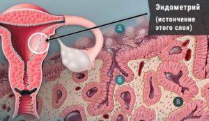 Беременность на тонком эндометрии