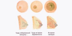 Увеличение одной груди при беременности