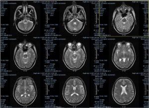 Расшифровка МРТ головного мозга