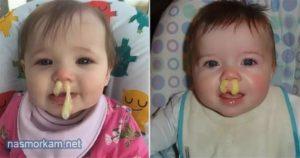У ребенка пожелтели ладони и нос