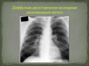 Диссеминация легких