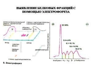 Электрофорез и плохой анализ крови