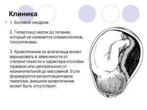 Ретрохориальная гематома и выделения