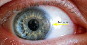 Невроз и фотопсия в глазах