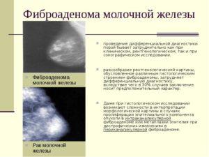 Образования в молочной железе