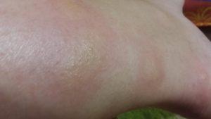 Зуд на ногах и остаточные шрамы расчесов