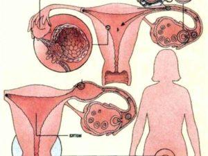 Беременность с одной труднопроходимой трубой или только ЭКО?
