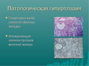 Гиперплазия эпителия молочной железы