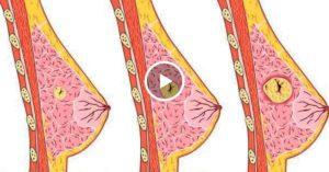 Уплотнение в молочной железе