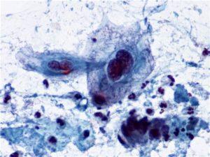 Цитология, обнаружены атипичные клетки