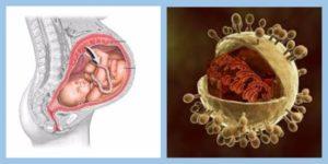 Цитомегаловирус и беременность