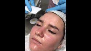 Чистка лица и пилинг при ГВ