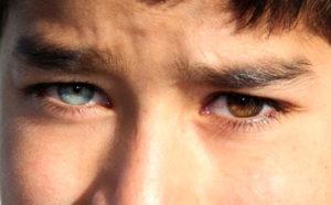 Один глаз видит ярче другого