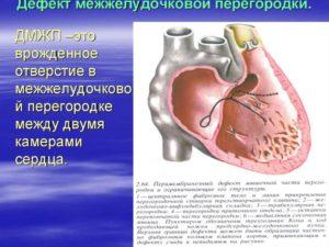 Дефект межжелудочковой перегородки у плода