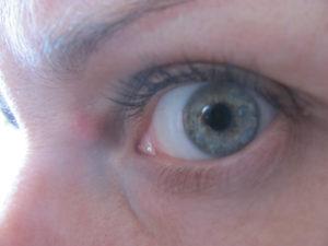 Синяк на внешнем уголке глаза