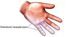 Немеют пальцы на левой руке