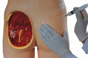 После первого укола мильгаммы болит ягодица