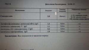 Антитела к антигену миелина