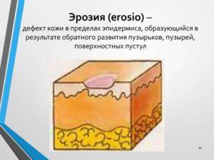 Эрозии на коже