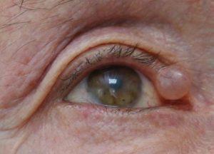 Киста на веке глаза, что на фото