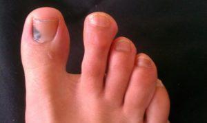 Пятна на ногтях больших пальцев ног