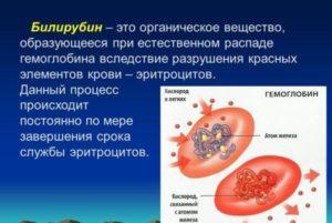 Повышенный билирубин и холестерин