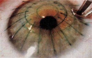 Замена хрусталика после радиальной кератотомии с рефракционной целью