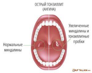 Увеличена миндалина с правой стороны