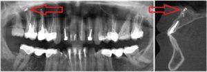 Онемение губы и подбородка после лечения зуба