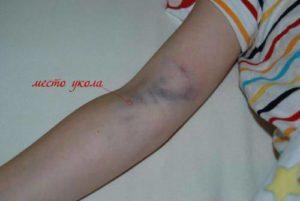 Гематома после взятия крови