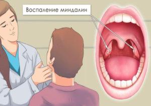 Комок в горле. Увеличены лимфоузлы