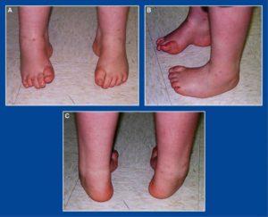 Инвалидность при плоскостопии