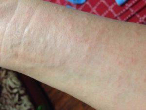 Мелкая сыпь на внутренней стороне рук