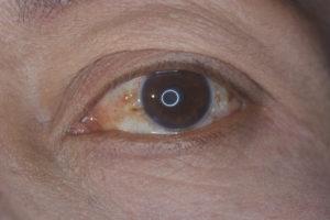 Водянистый нарост на глазном яблоке