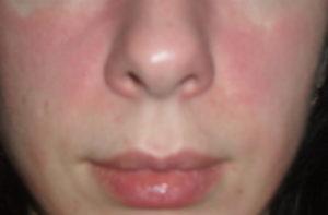 Химический ожог от базирона ас или аллергическая реакция