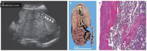 Кальцинаты в плаценте на 36 неделе беременности