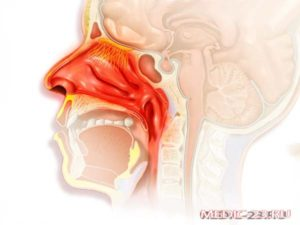 Заложенность носа когда ложусь