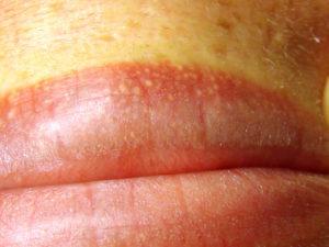 Высыпания на половых губах с болью кожи