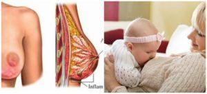 Простуда молочных желез