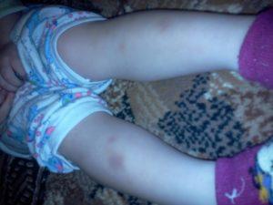 Стали появляться синяки на ногах у ребёнка в 8 лет